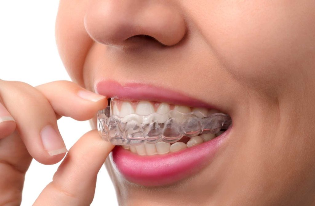 woman removing invisalign appliance while smiling